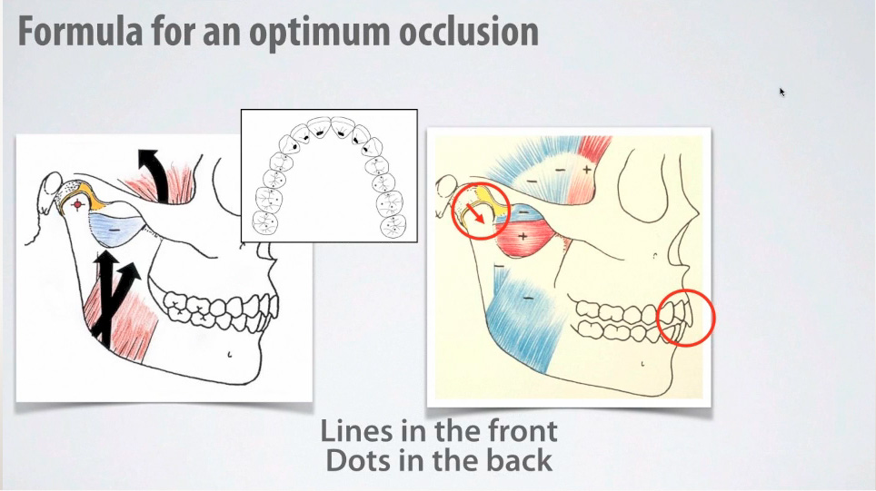 Formula for a optimum occlusion
