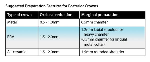 Posterior Tooth Preparation
