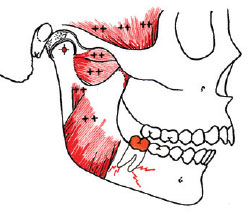 disharmony between TMJs and occlusion