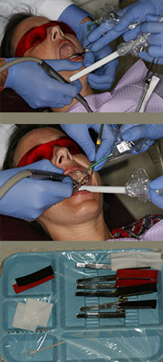 How to use your dental assistant while equilibrating