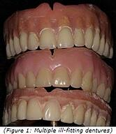 Creating comfortable dentures