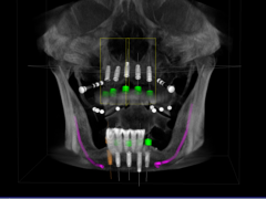 CT Scan for Implants
