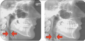 CBCT scan of Airway problems