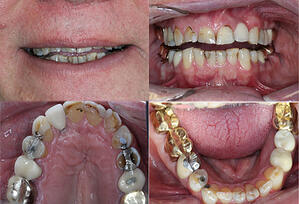 smile shot and occlusal shots