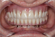 Removable Prostheris with bar2