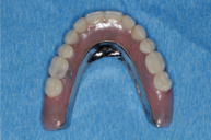 Removable Prostheris with bar3