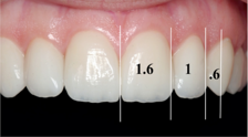 The Golden Proportion of Dentistry