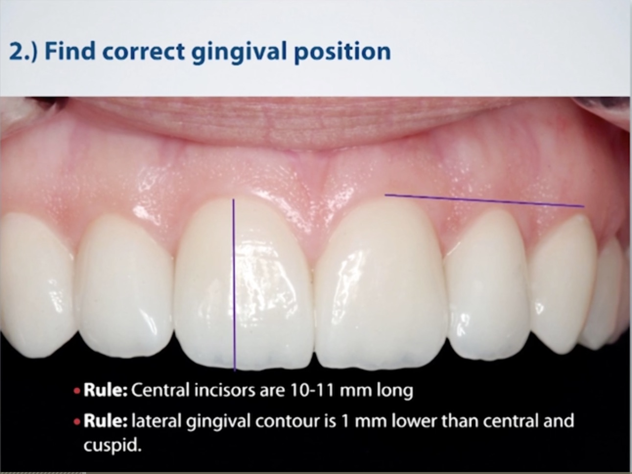 Correct Gingival Position
