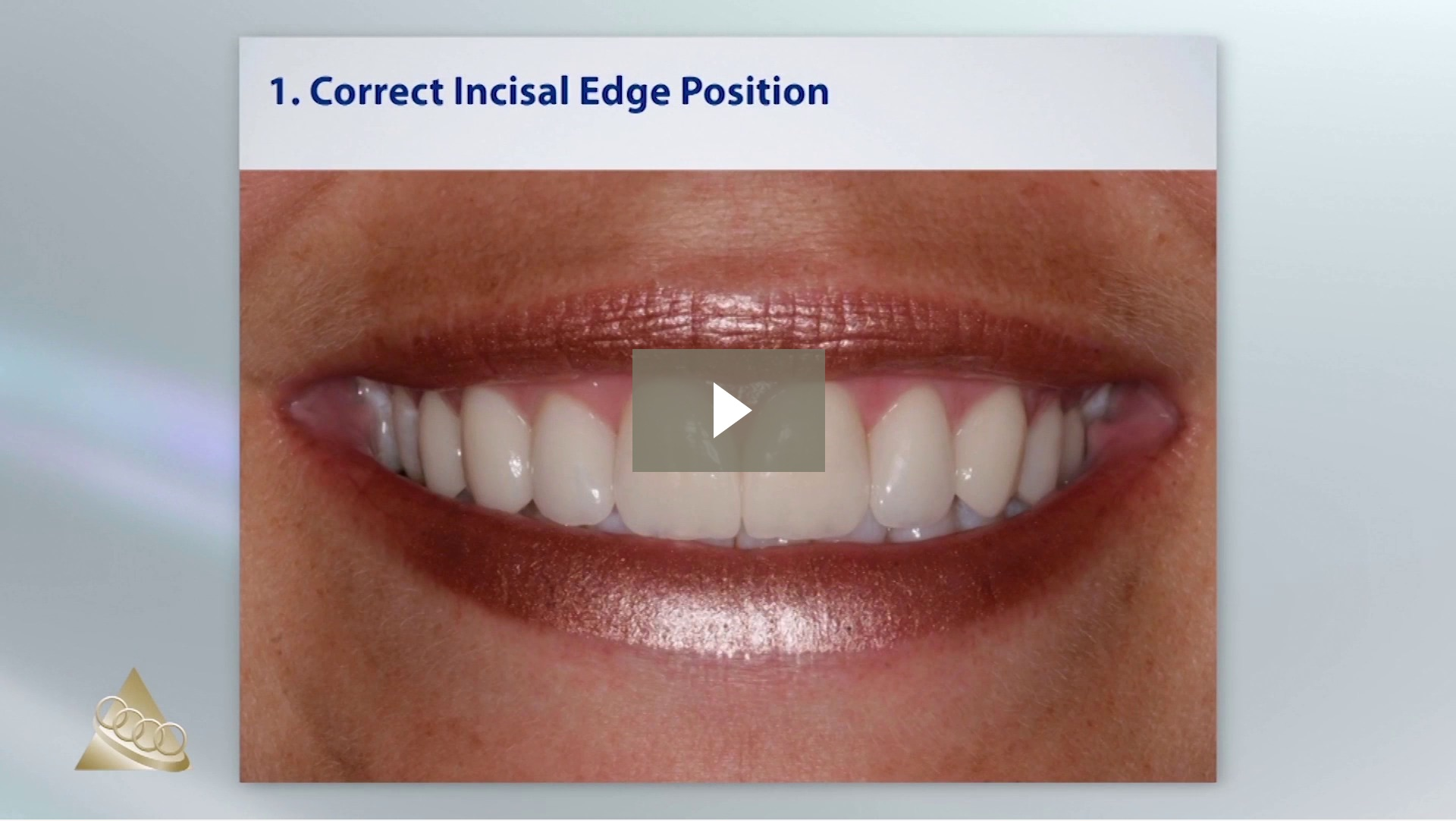 Correct Incisal Edge Position