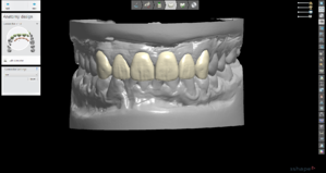 Digital Protocols for Dentistry